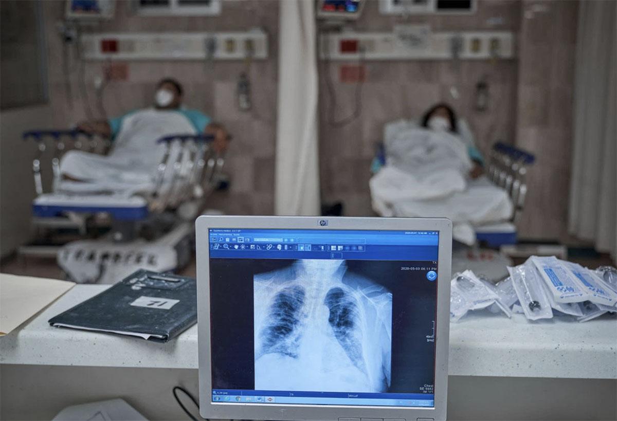 Una radiografía de un paciente con covid-19. Foto: Iván Macías